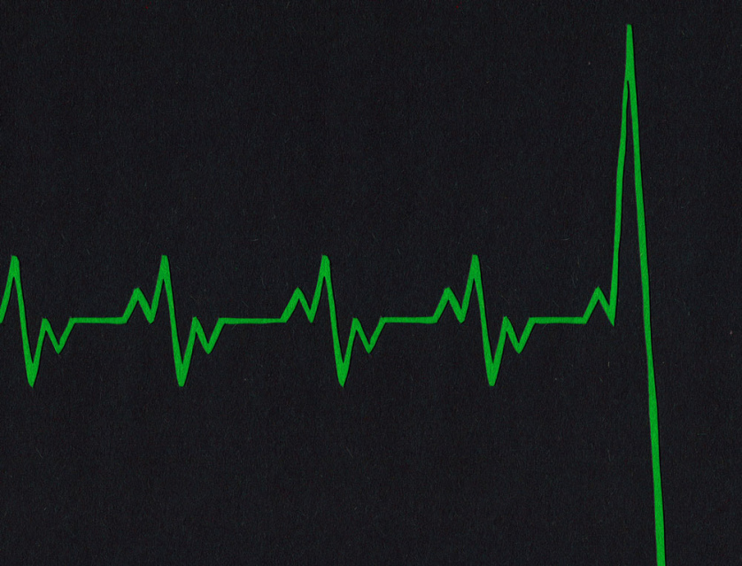 A black and green graphic of a heart rate monitor where the line dives precipitously.